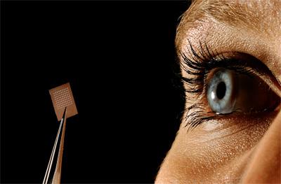 Лечение отслойки сетчатки глаза - лазерная фотокоагуляция